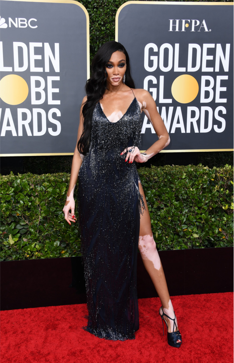 Winnie Harlow - 77th Annual Golden Globe Awards